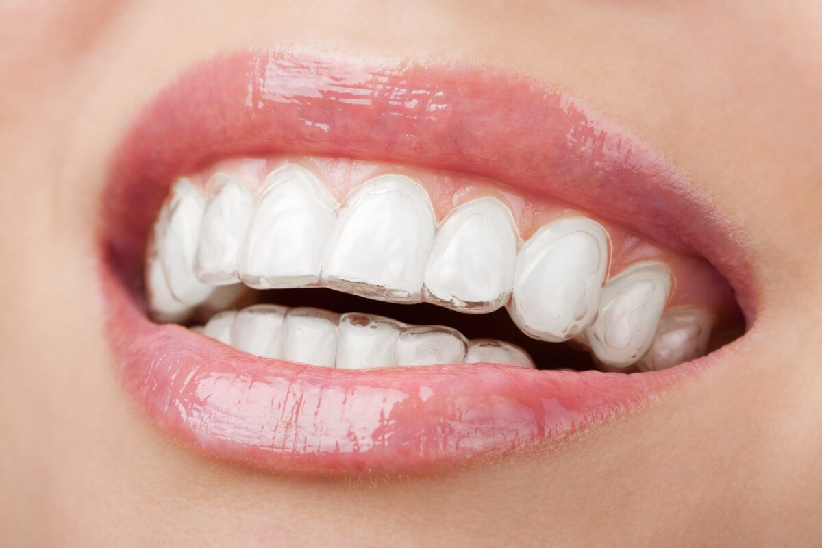 close up of woman's mouth wearing clear dental aligner