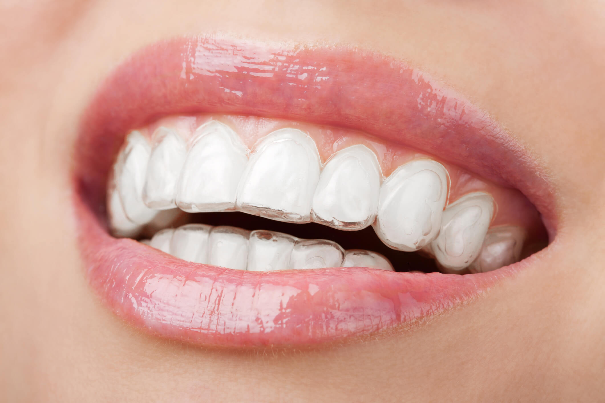 Why you should go for our invisalign dental care