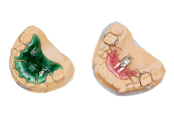 Palatal Expander Device (PED)