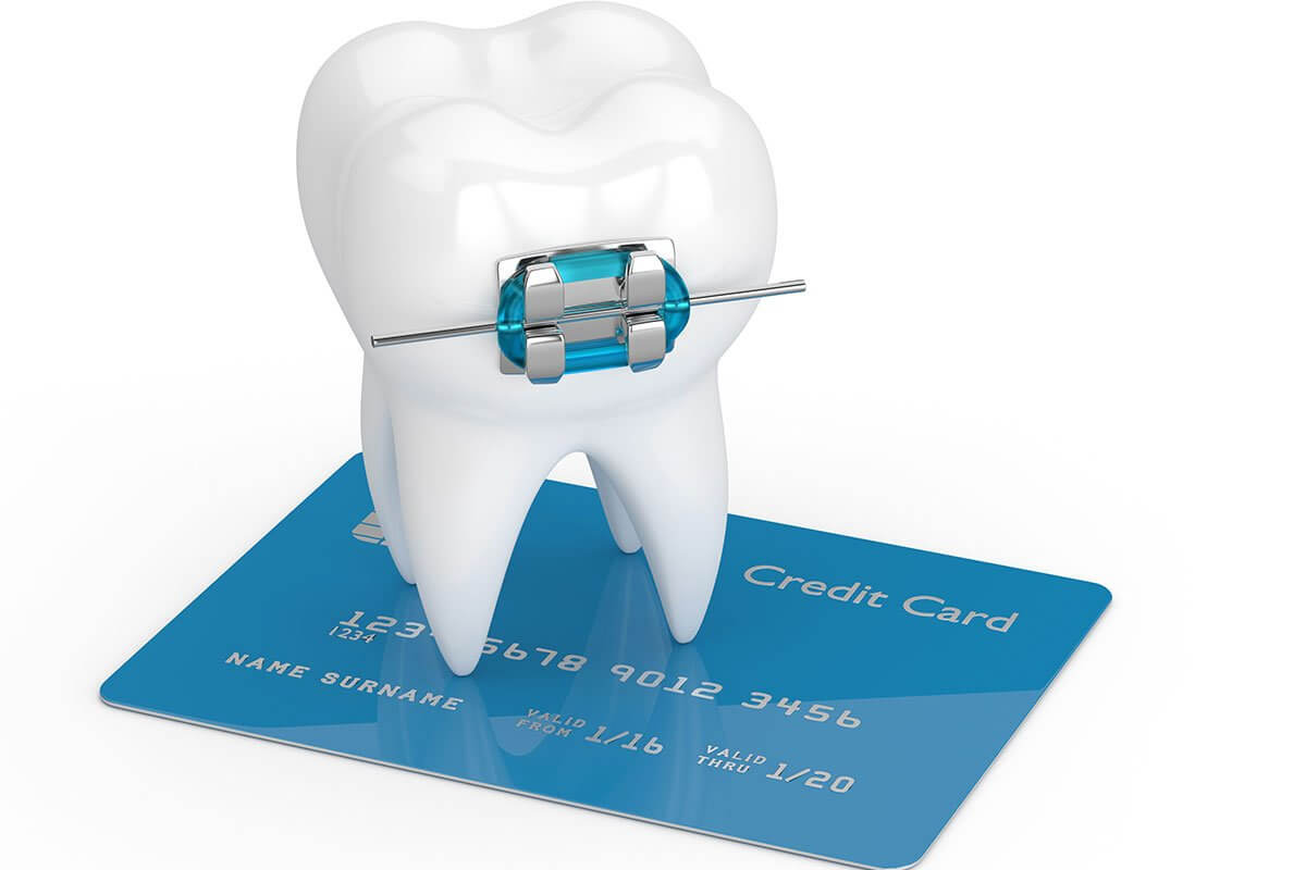 What is the Typical Cost of Getting Braces?