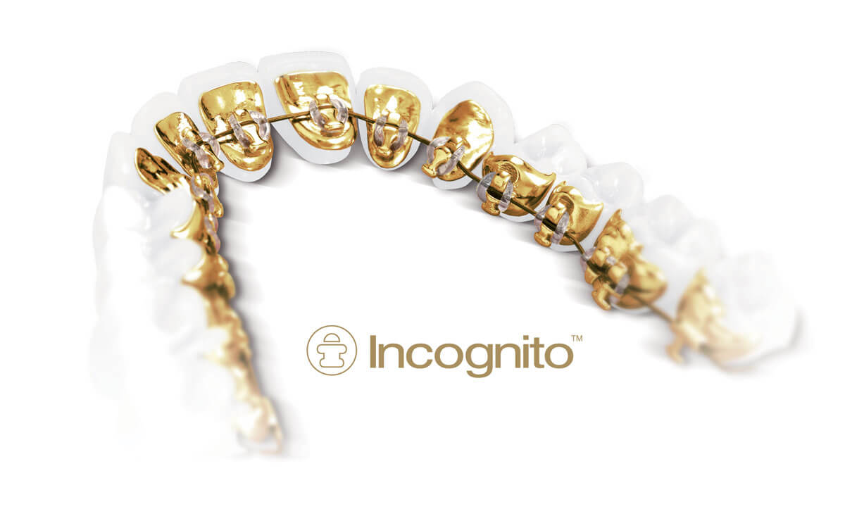 Incognito Braces in NYC